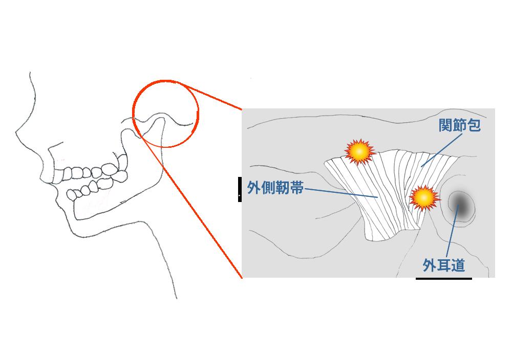 関節包・靭帯の障害(Ⅱ型 )