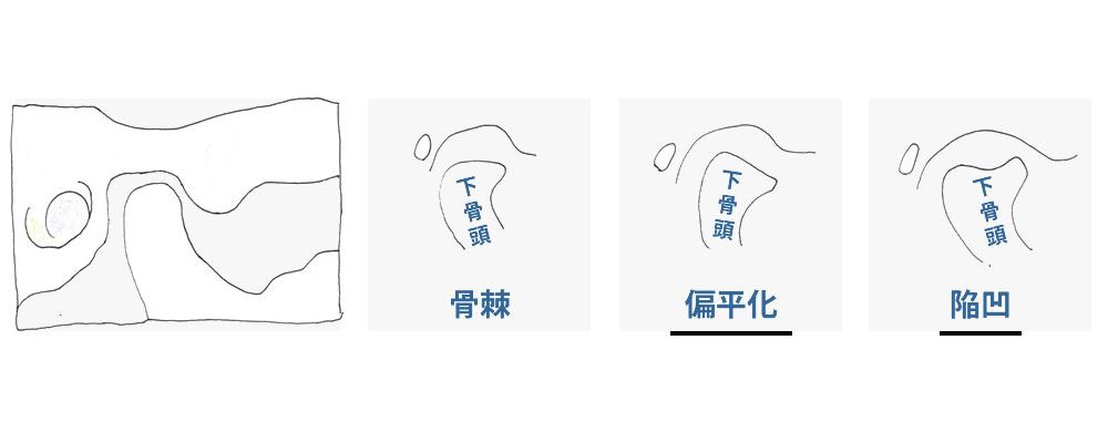関節の変形による障害(Ⅳ型 )