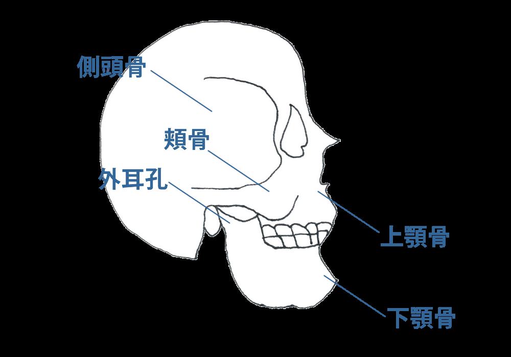 筋肉まわりの障害(Ⅰ型)